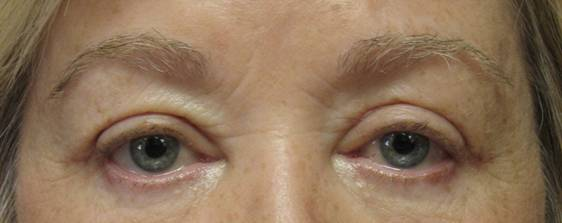 Photo of woman's eyes after undergoing upper lid eyelid surgery with Dr. Davis