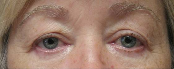 Photo of woman's eyes before undergoing upper lid eyelid surgery with Dr. Davis