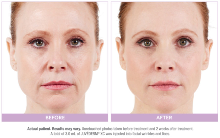 before and after photo of female juvederm patient showing younger face after injection with dermal fillers.